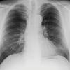 RÖ-Lunge